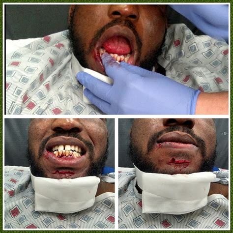 Post fight picture: Corey Anderson, bottom teeth went